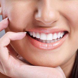 لمنیت یا لمینت یا روکش دندان